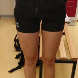 Kreuzbandriss (4): Das immer dünner werdende Bein